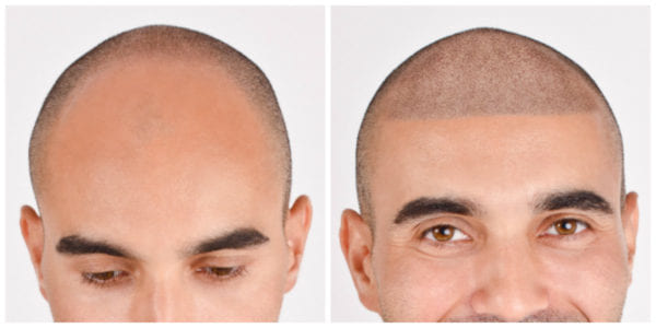 Client B before and after micropigmentation