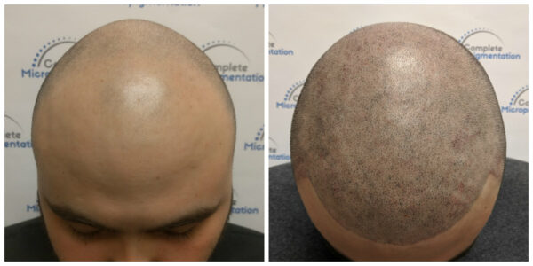 Ig top - before and after scalp micropigmentation by Complete Micropigmentation
