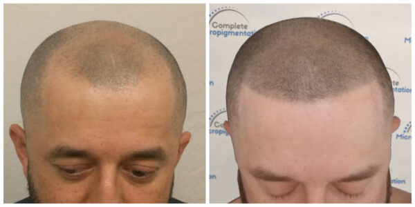 ao front - before and after scalp micropigmentation by Complete Micropigmentation