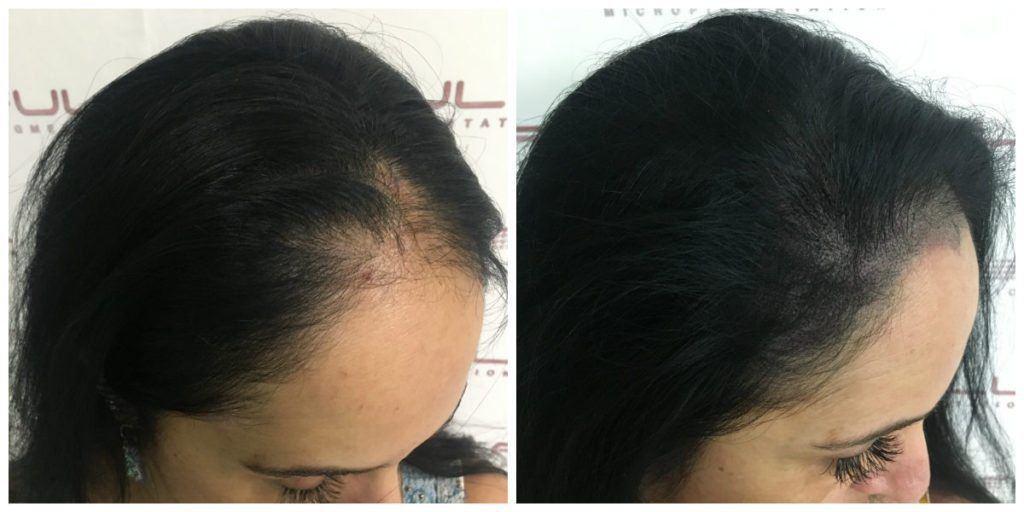 Client L - Female Scalp Micropigmentation Before and After