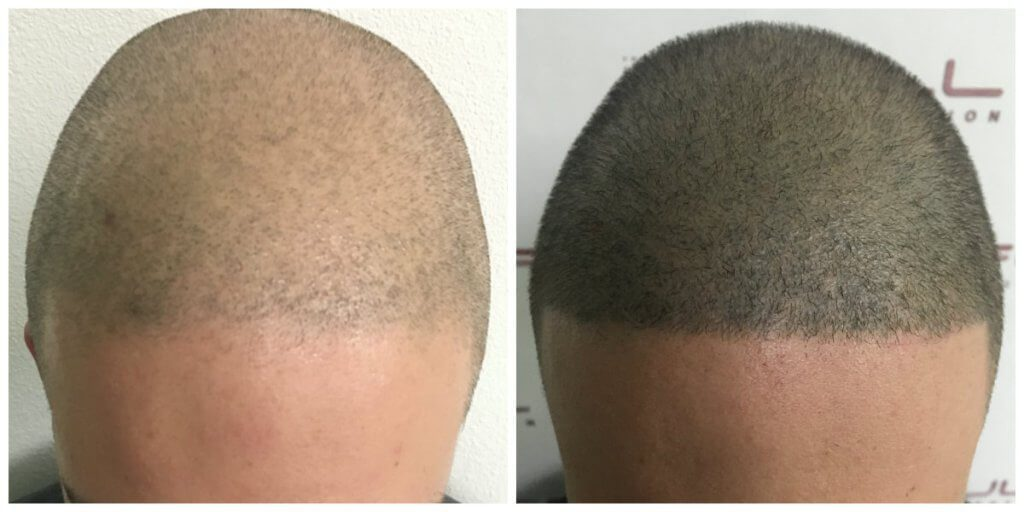 Max New Aug 2017 - Before and After Forehead