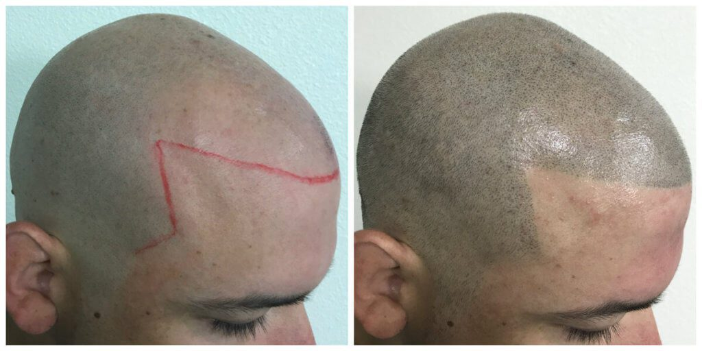Osmel side before and after micropigmentation