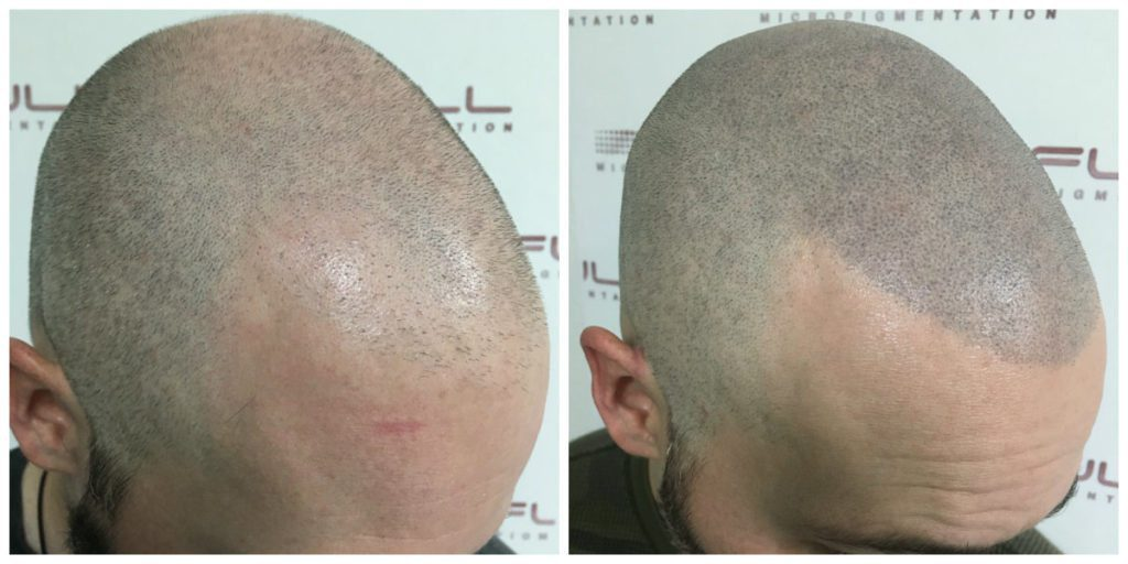 Scalp Micropigmentation - Adam - Before and After 1