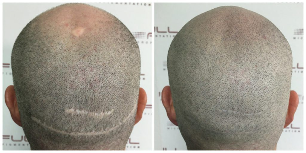 Scalp Micropigmentation - Adam - Before and After 2