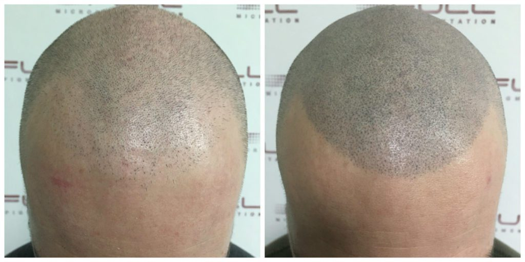 Scalp Micropigmentation - Adam - Before and After 3