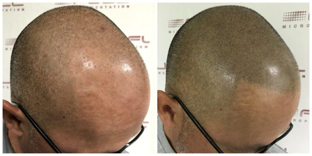 Scalp Micropigmentation Before and After - Las Vegas, NV - 2