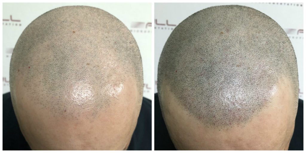 Scalp Micropigmentation Before and After - Las Vegas, NV - 3