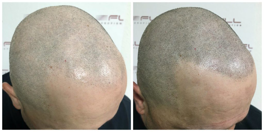 Scalp Micropigmentation Before and After - Las Vegas, NV - 4