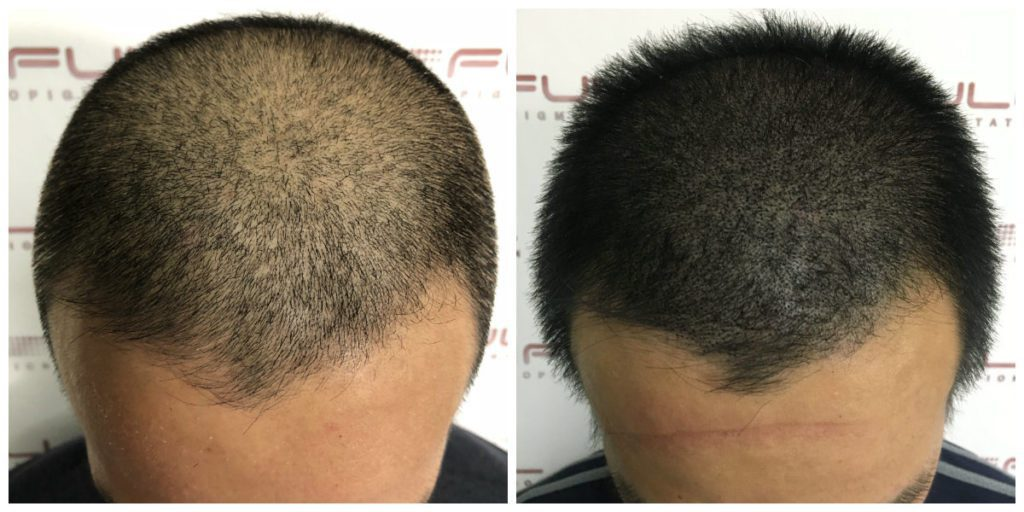 Scalp Micropigmentation Before and After - Las Vegas, NV - 5