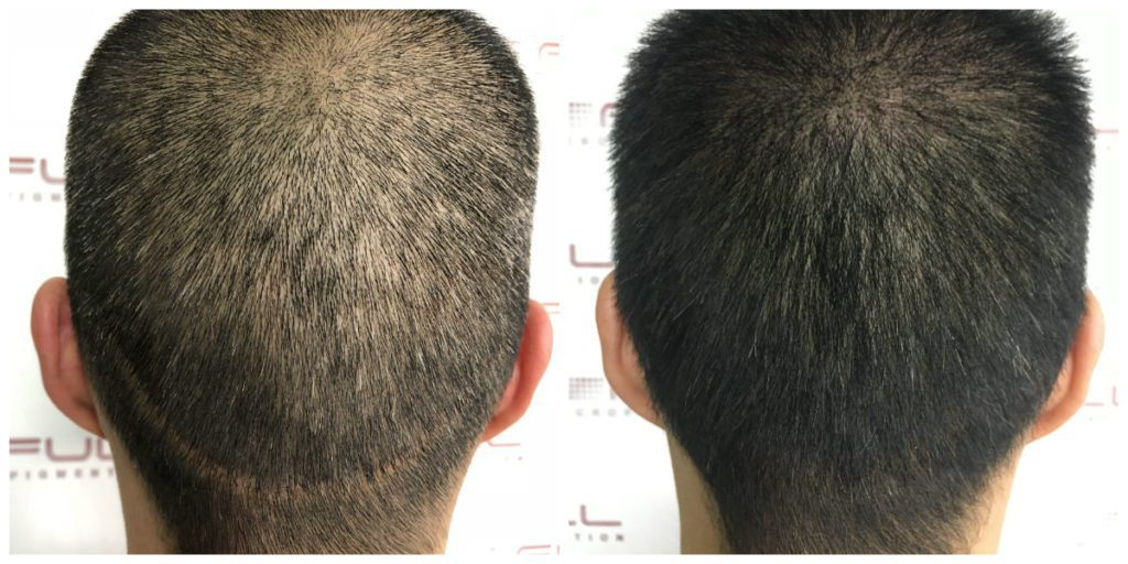 Scalp Micropigmentation Before and After - Las Vegas, NV - 7
