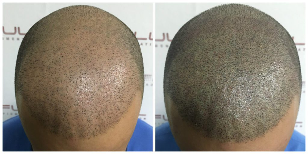 Scalp Micropigmentation - Eduard - Before and After 1