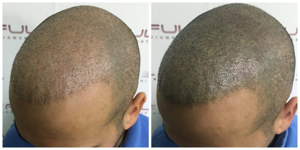 Scalp Micropigmentation - Eduard - Before and After 2