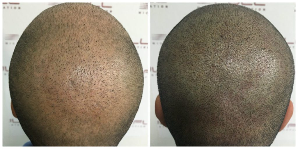 Scalp Micropigmentation - Eduard - Before and After 3