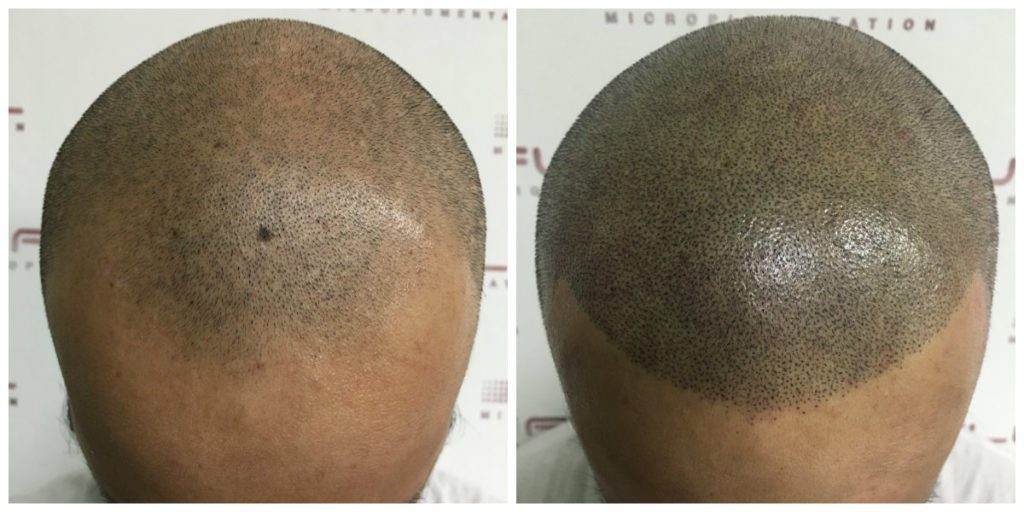 Scalp Micropigmentation - Julio - Before and After 1