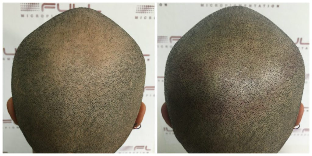 Scalp Micropigmentation - Julio - Before and After 2