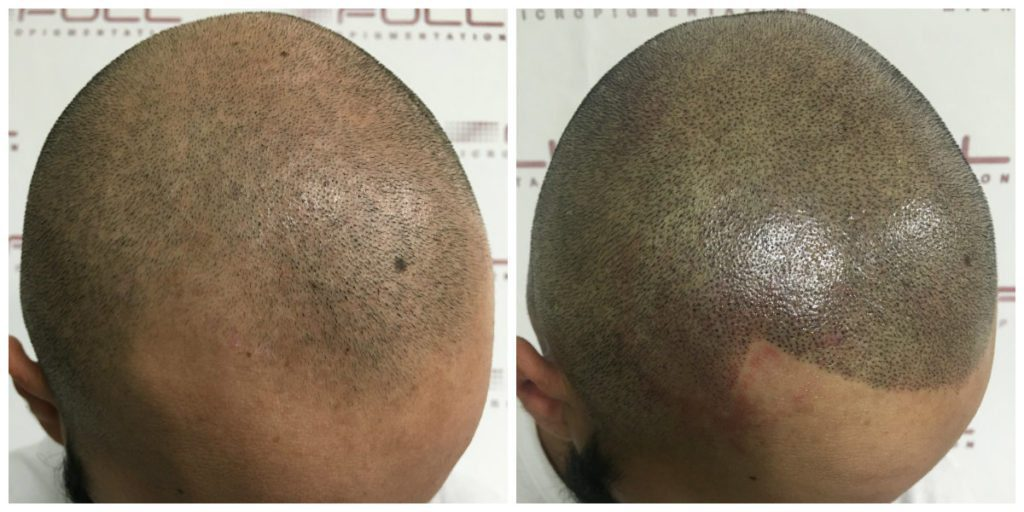 Scalp Micropigmentation - Julio - Before and After 3