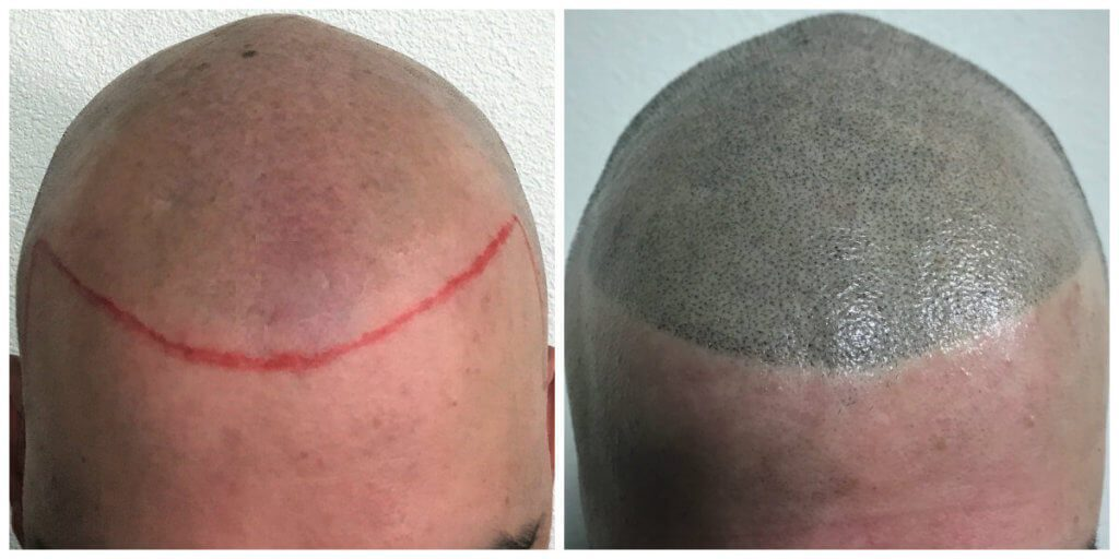 Osmel front before and after
