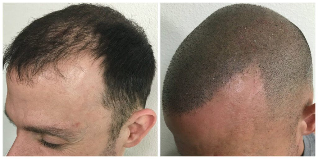 Ryan side before and after micropigmentation