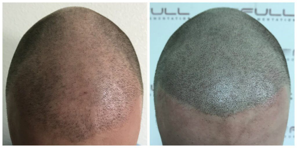 Tyler front before and after micropigmentation