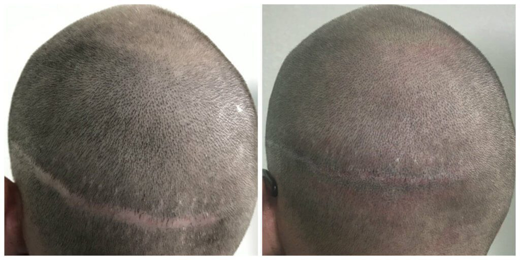 Tyler scar before and after micropigmentation