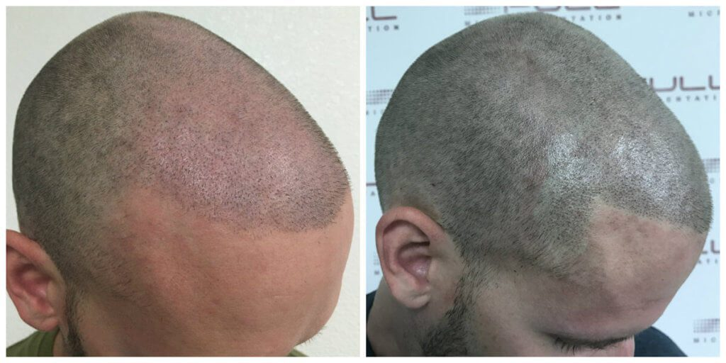 Tyler side before and after micropigmentation