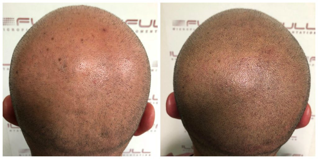 Scalp Micropigmentation Before and After Las Vegas NV