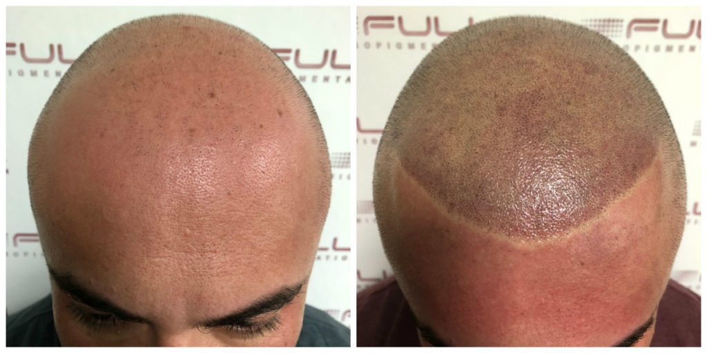 Scalp Micropigmentation Before and After Las Vegas, NV
