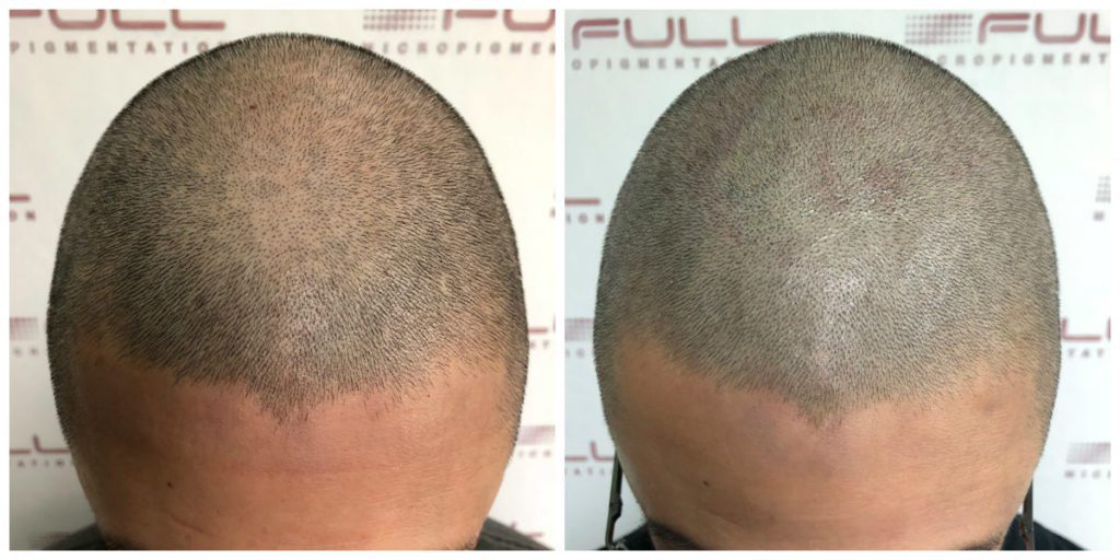 Scalp Micropigmentation - Before and After Brian