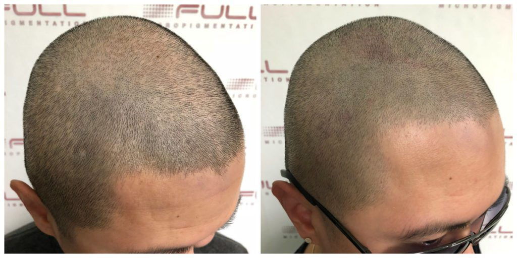 Scalp Micropigmentation - Before and After Brian 2