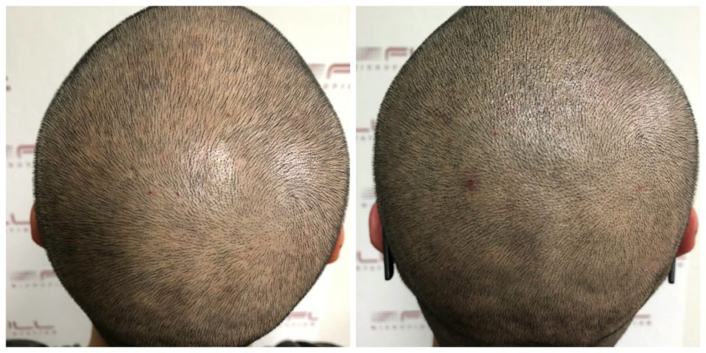 Scalp Micropigmentation - Before and After Brian 3