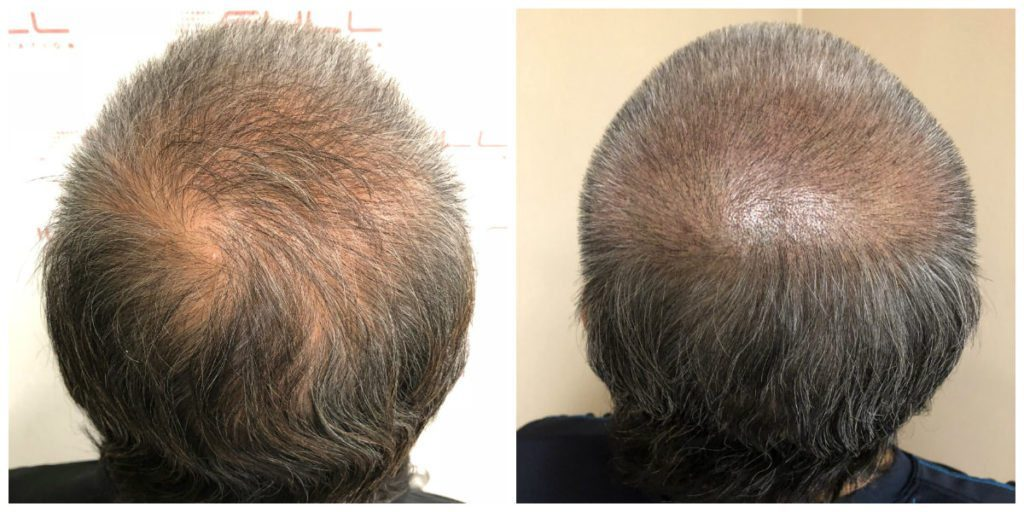 Scalp Micropigmentation Before and After 2 - FULL Micropigmentation Client Jang