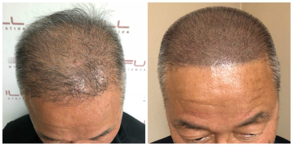 Scalp Micropigmentation Before and After 3 - FULL Micropigmentation Client Jang
