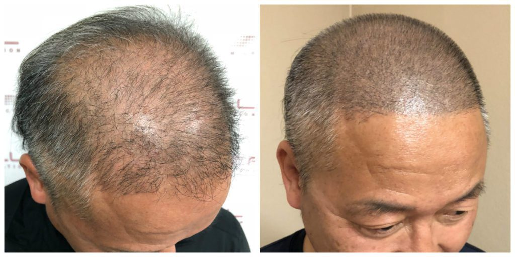 Scalp Micropigmentation Before and After 4 - FULL Micropigmentation Client Jang
