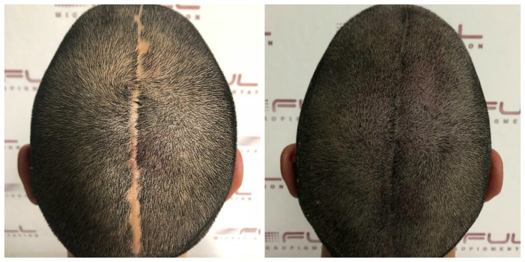 Scalp Micropigmentation Services in Las Vegas - FULL Micropigmentation Before and Ater 1
