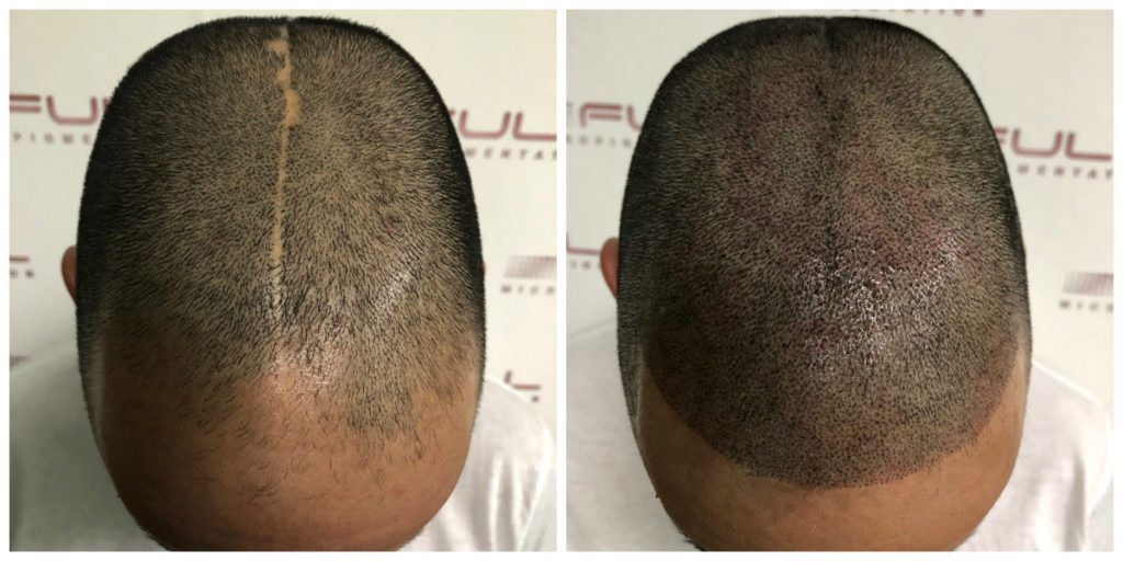 Scalp Micropigmentation Services in Las Vegas - FULL Micropigmentation Before and Ater 2