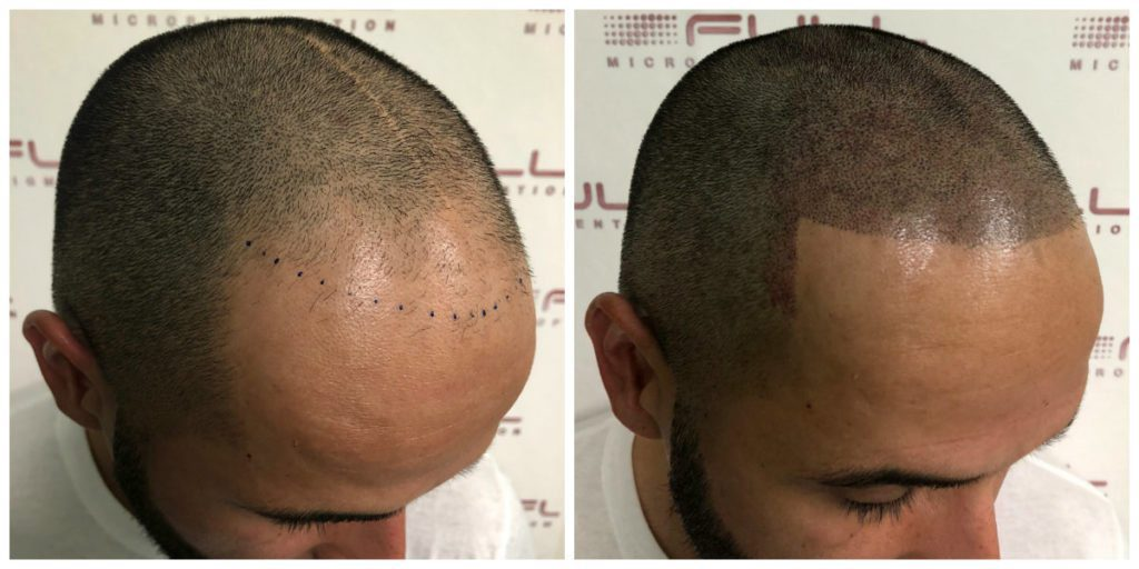 Scalp Micropigmentation Services in Las Vegas - FULL Micropigmentation Before and Ater 3