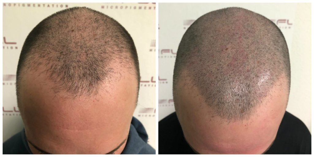 Alex Scalp Micropigmentation Before and After (2)