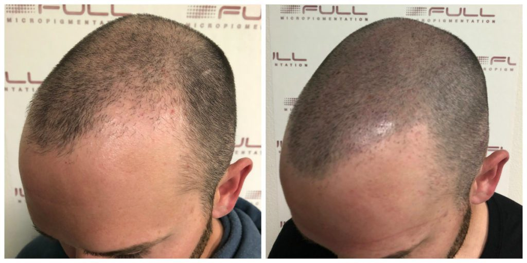 Alex Scalp Micropigmentation Before and After (3)