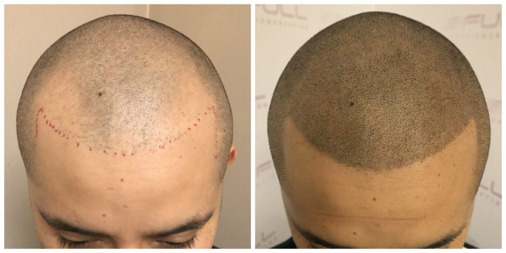 Before and After Scalp Micropigmentation Las Vegas, NV - Carlos M 1