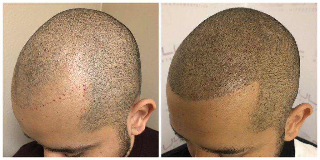 Before and After Scalp Micropigmentation Las Vegas, NV - Carlos M 2