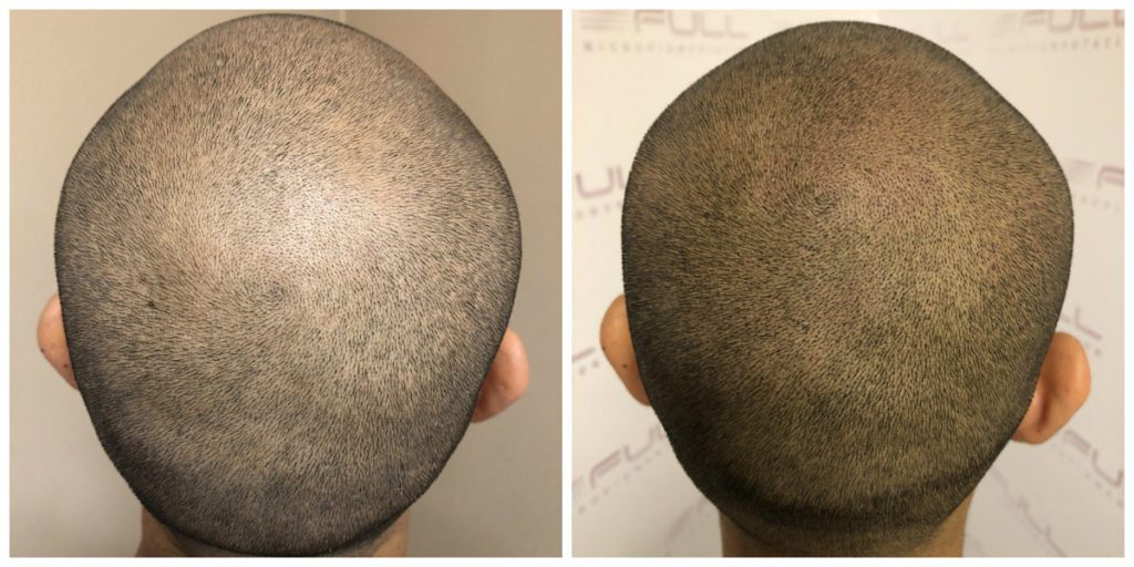 Before and After Scalp Micropigmentation Las Vegas, NV - Carlos M 3