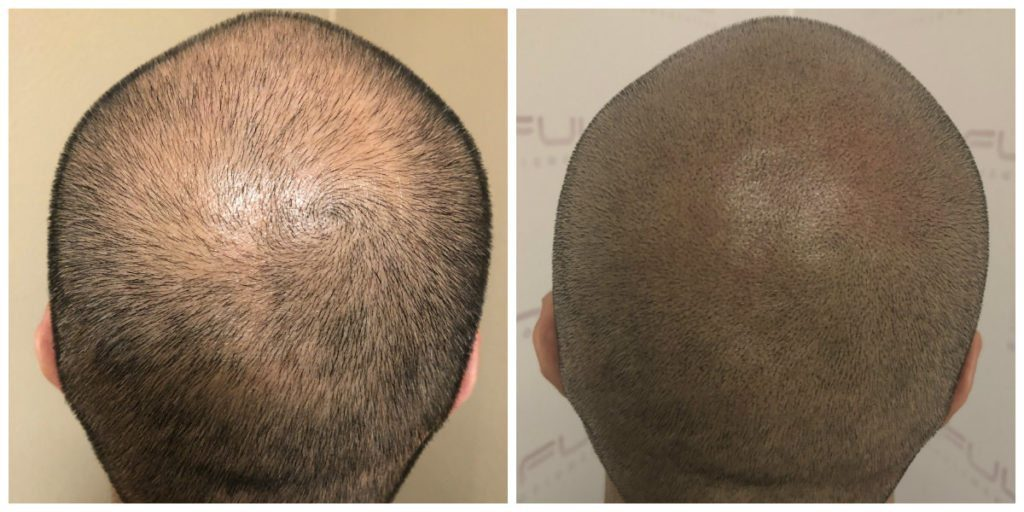 Las Vegas Scalp Micropigmentation Before and After - Carlos (1)