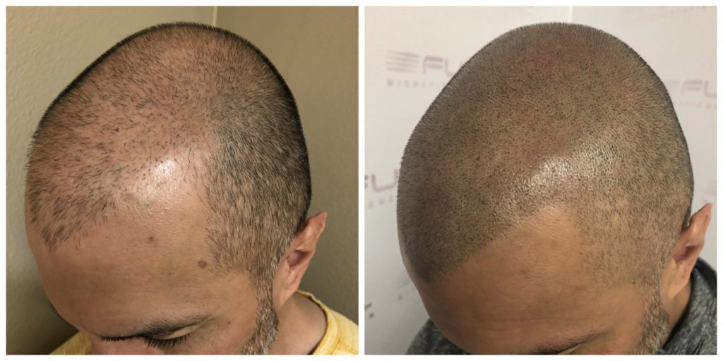 Las Vegas Scalp Micropigmentation Before and After - Carlos (2)