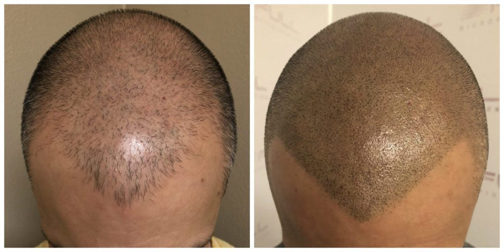 Las Vegas Scalp Micropigmentation Before and After - Carlos (3)