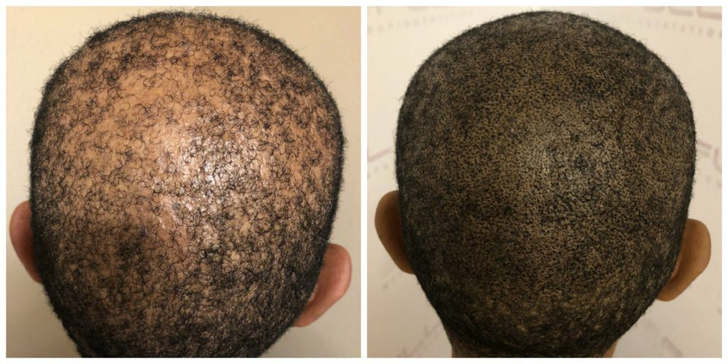 Las Vegas Scalp Micropigmentation Before and After - Kim (1)