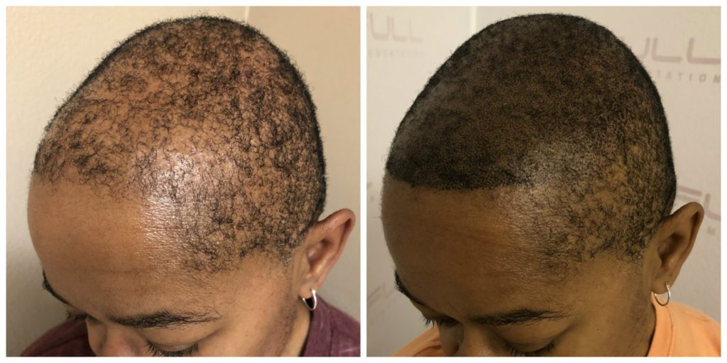 Las Vegas Scalp Micropigmentation Before and After - Kim (2)