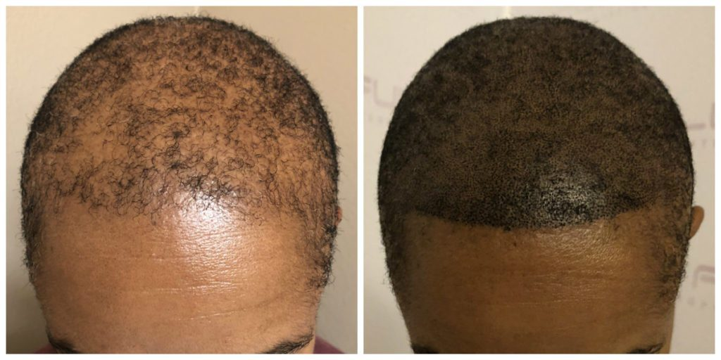 Las Vegas Scalp Micropigmentation Before and After - Kim (3)