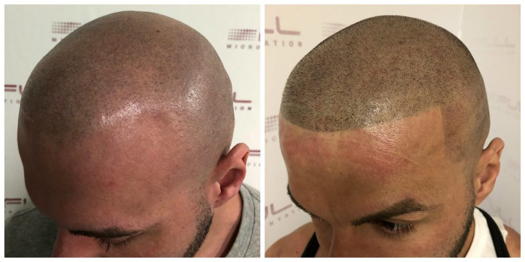Mike Scalp Micropigmentation Before and After 1
