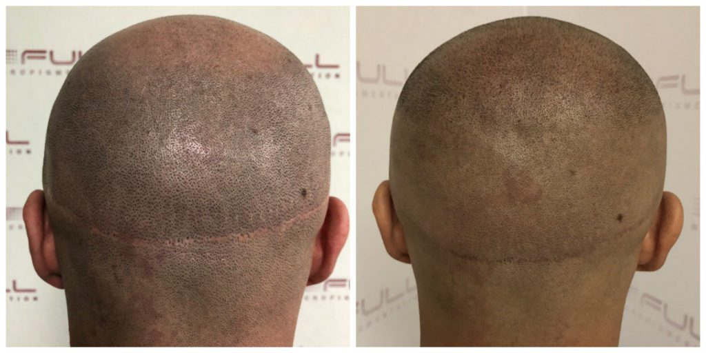 Mike Scalp Micropigmentation Before and After 3