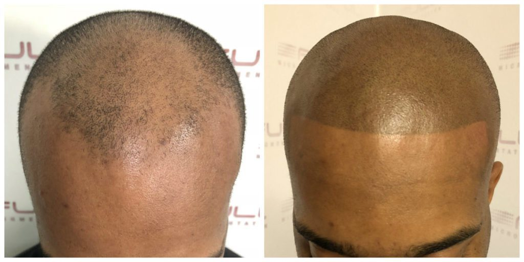 Sulaimon Scalp Micropigmentation Before and After 4